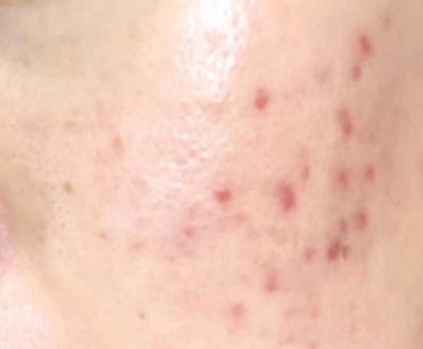 Many papules on the cheeks