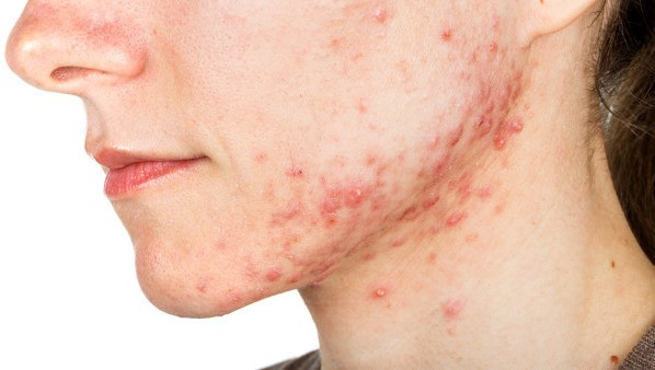 There is a lot of inflammatory acne on the lower jaw of the face