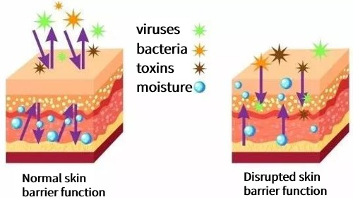 Comparison of normal skin barrier and disrupted skin barrier. The normal skin barrier can prevent the loss of body water and resist the influence of external stimuli, such as bacteria, viruses, and toxins. Disrupted skin barrier is vulnerable to external damage and loss of epidermal moisture.