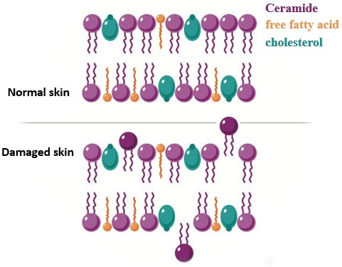 The bi-molecular structure of lipids between cells of normal skin is tightly arranged. The damaged skin loses a lot of ceramide, free fatty acids and cholesterol cannot be connected together.
