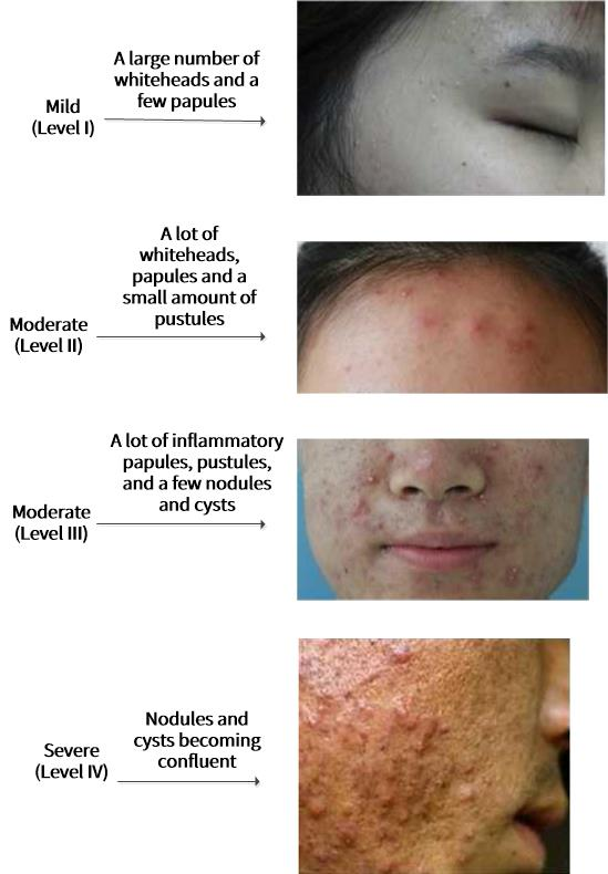 Grading of acne. The mildest degree (degree I) has only a lot of whiteheads and a few papules. Moderate grade (degree II), there are a lot of whiteheads, papules and a few pustules. Moderate grade (degree III), there are a lot of papules, pustules, and a few nodules and cysts. Severe grade (degree IV), Nodules and cysts becoming confluent.