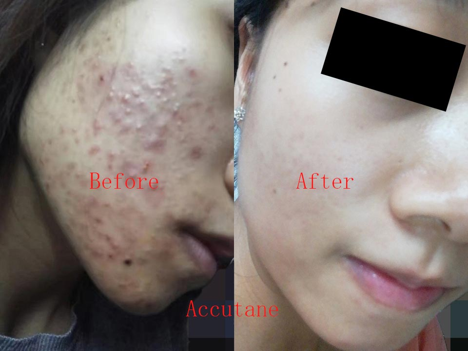 Before using isotretinoin, my face was full of acne, pimples, pustules, nodules, small cysts, and my face was red and swollen because of the acne. After using isotretinoin, all the acne disappeared and the face became white and flawless.