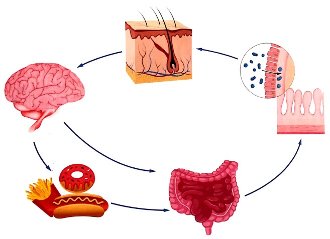 The brain directly affects the intestinal environment through food intake or affects the intestinal environment due to emotional stress. The intestinal barrier is weakened, and the toxins released by harmful microorganisms in the intestine enter the blood, causing inflammation and insulin resistance, which in turn affects the skin. The deterioration of the skin will cause the brain to produce negative emotions, which in turn makes the skin worse.