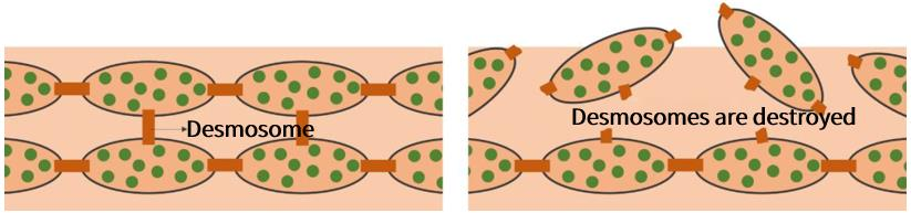 Keratinocytes are connected to each other through desmosomes to form a compact structure. If desmosomes are destroyed, keratinocytes become loose.
