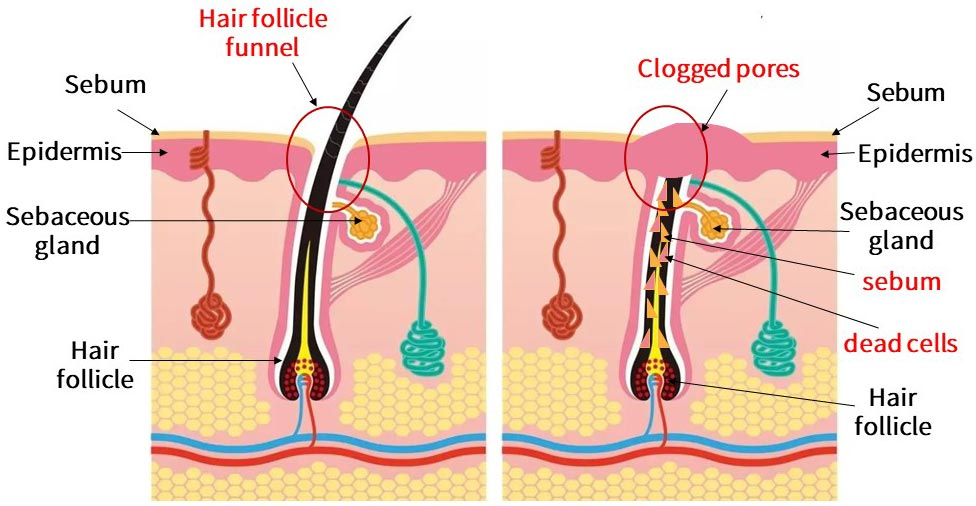 The structure of the sebaceous glands. The sebaceous glands connect the hair follicle channels, and the sebum secreted by the sebaceous glands and the dead cells shed from the stratum corneum are excreted through the channels. However, if the cells at the funnel of the hair follicle cannot fall off normally, the pores are covered, and sebum and dead cells are blocked inside the hair follicle.