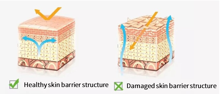 The picture on the left is a healthy skin barrier. Its stratum corneum is intact and can prevent the loss of body water and damage from external stimuli. The picture on the right is an unhealthy skin barrier. Its epidermis is damaged, the water in the body is easily lost, and the outside is easy to damage the inside of the skin.