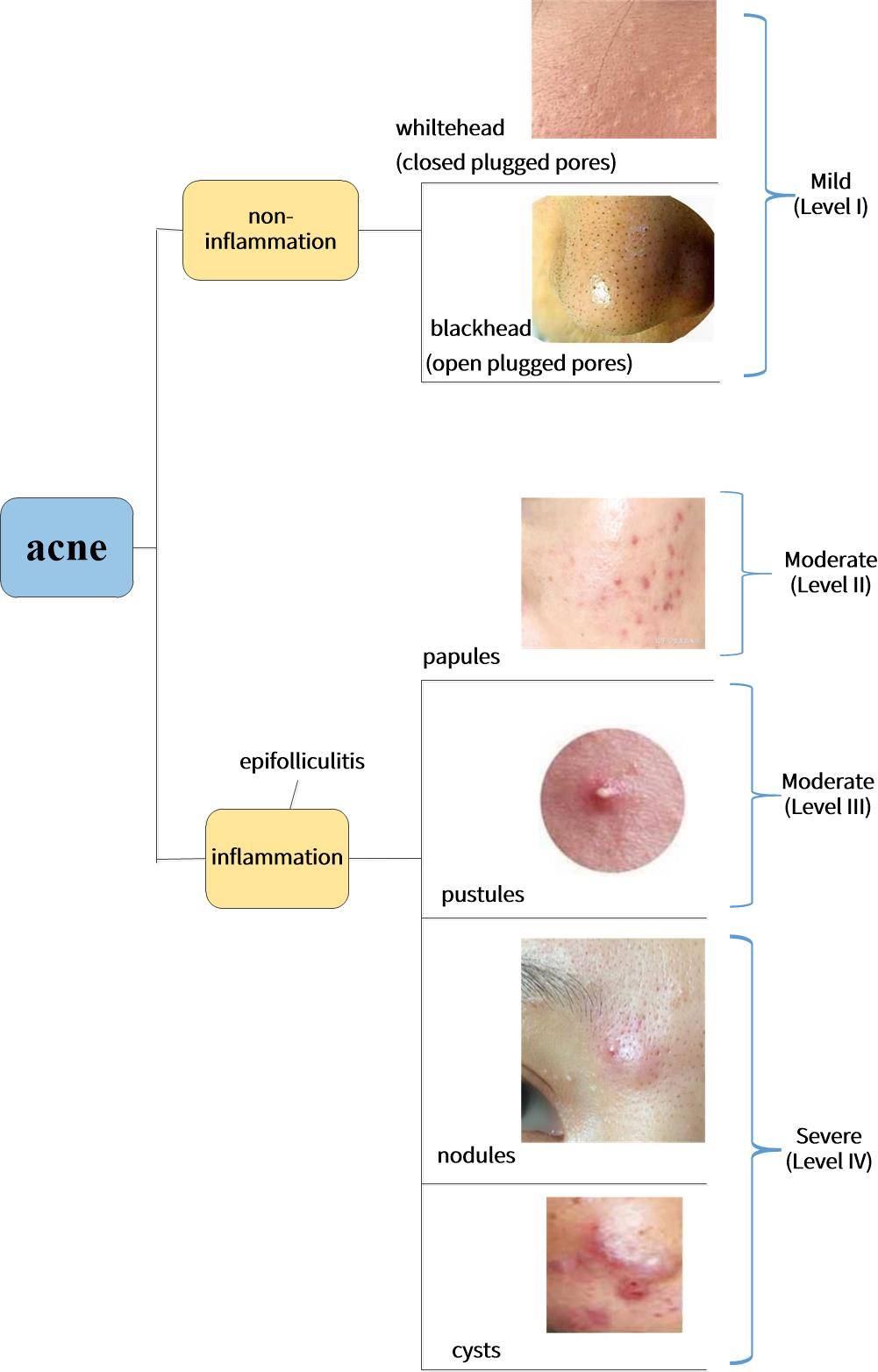 Different types of acne. Whiteheads and blackheads are non-inflammatory acne, and they are also the mildest grades of acne. Papules, pustules, nodules and cysts belong to inflammatory acne. Papules and pustules belong to moderate acne, and nodules and cysts belong to severe acne.