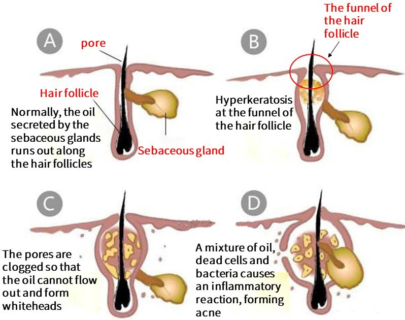 Normally, the oil secreted by the sebaceous glands runs out along the hair follicles. But when hyperkeratosis at the funnel of the hair follicle. The pores are clogged so that the oil cannot flow out and form whiteheads. A mixture of oil, dead cells and bacteria causes an inflammatory reaction, forming acne.