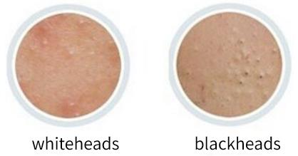 Whitehead looks like it has a white head. It can feel bumpy to the touch and is not easy to notice without looking closely. The appearance of the blackhead is black, and others can see it at a glance.