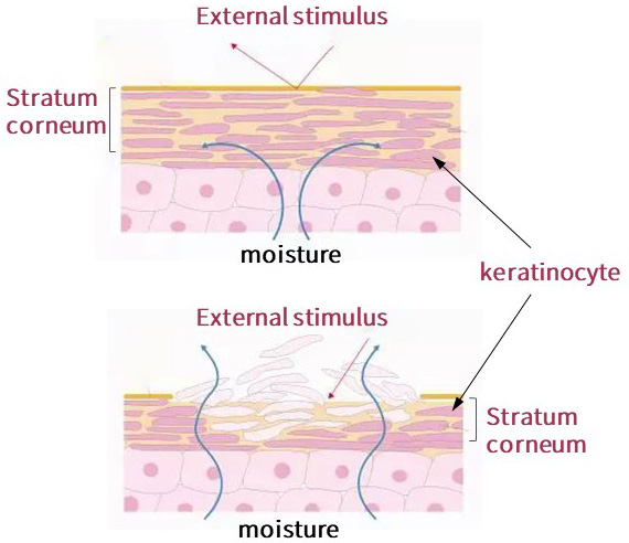 Healthy skin versus unhealthy skin, healthy skin is protected from moisture loss and external stimuli.