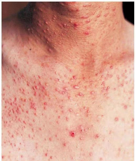 The chest suffers from severe fungal acne. Fungal acne spreads across the chest and neck. These acne are the size of a rice grain and manifest in the form of pustules and nodules.