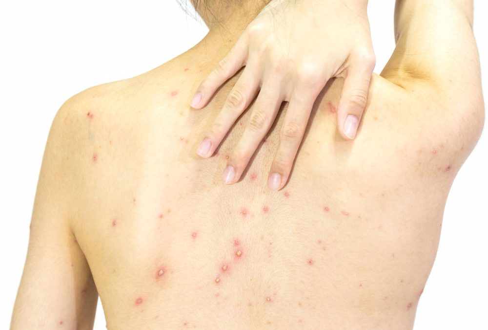 The Definitive Guide to Fungal Acne Treatment