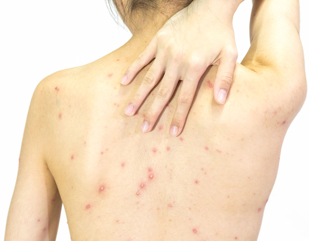 A woman touched her neck and back with her right hand. Her back is covered with fungal acne.
