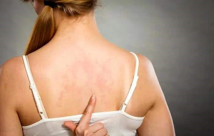 A woman pointed her index finger to her back. Her back was suffering from mild fungal acne.