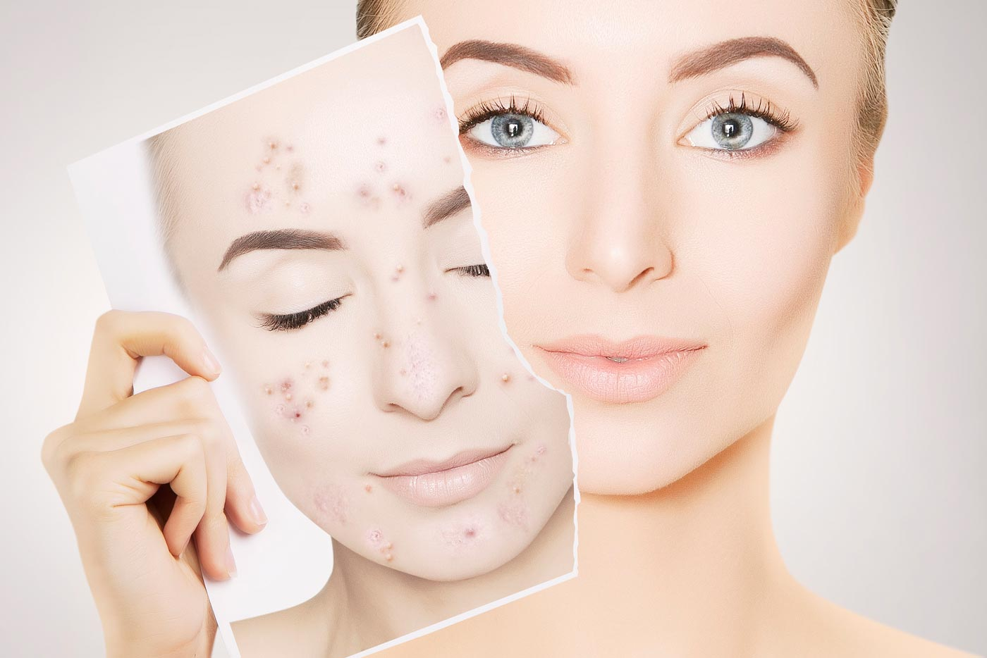 A woman holds a photograph of the state of her skin where her face used to be full of acne. Now her face is acne-free and her skin is in excellent condition.