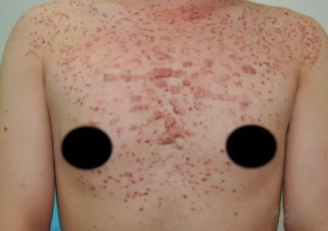 The chest suffered from a very severe case of fungal acne. The fungal acne was all over the chest and neck and some of the acne developed into nodules, cysts, and flesh patches.