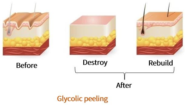 The skin surface is rough and uneven before chemical peeling. Chemical peeling is to remove the rough epidermis, and then rebuild the new epidermis to make the skin smooth again.