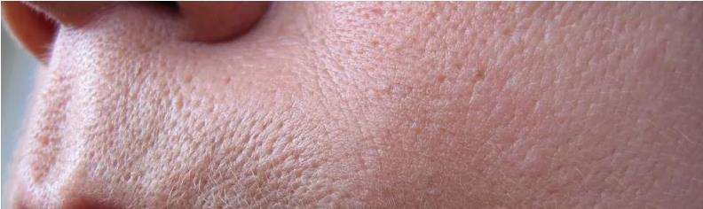 Oilyskinbeauty Enlarged pores after skin aging