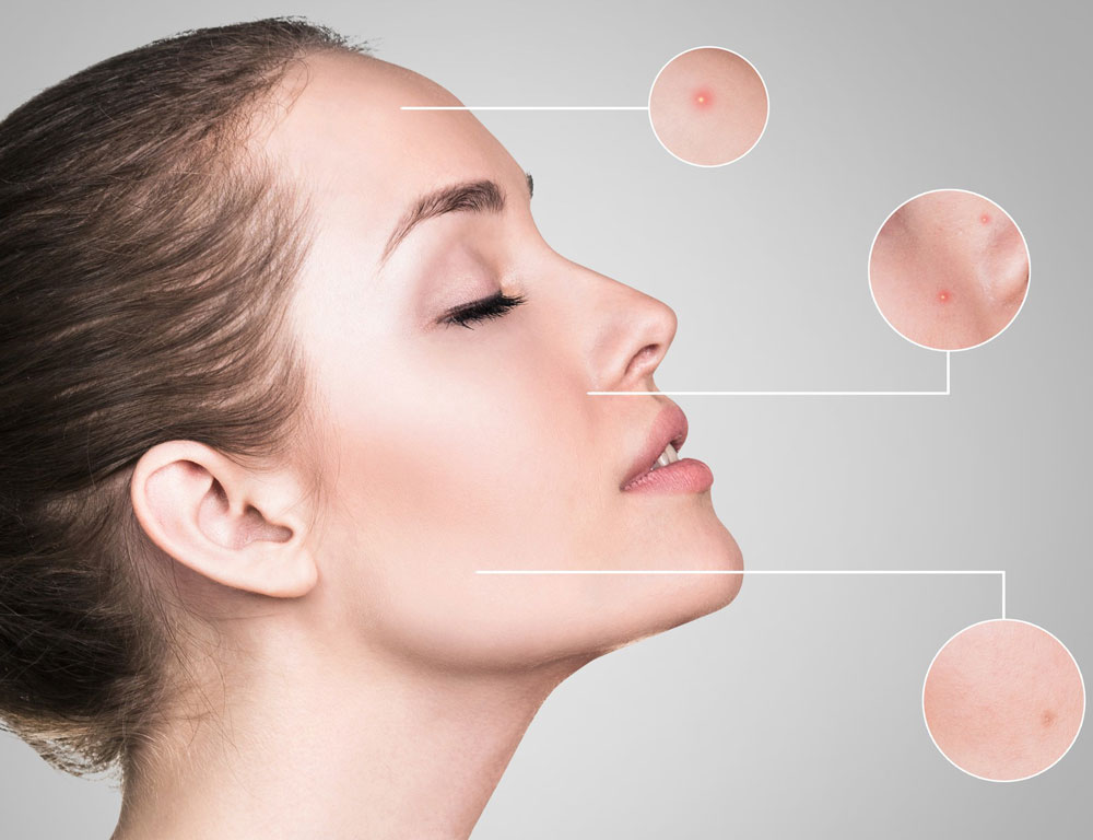 Women with various skin problems, such as acne, wrinkles, aging.