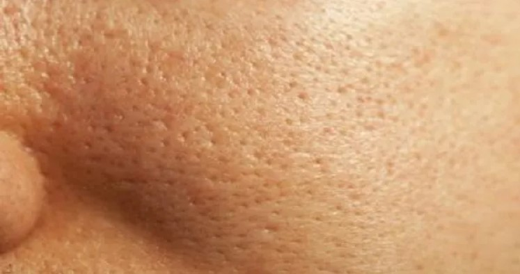 The facial pores are large and each pore is clearly visible.