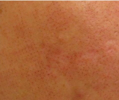 Skin condition after fractional laser. The surface of the skin appears faintly red. The skin seems to have been punched with a pinhole, which is caused by the laser penetrating the epidermis.