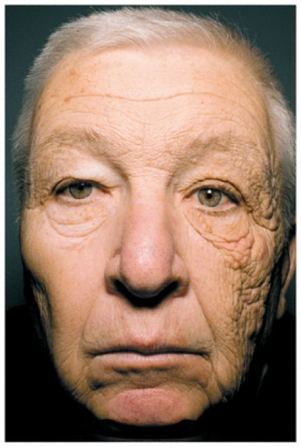 The left face of a female driver is often exposed to the sun, and her left face is seriously aging with more wrinkles. The sun on the right face is less, the photoaging is not serious, and the wrinkles are less.