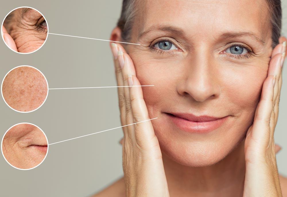 Oilyskinbeauty A womans skin is aging