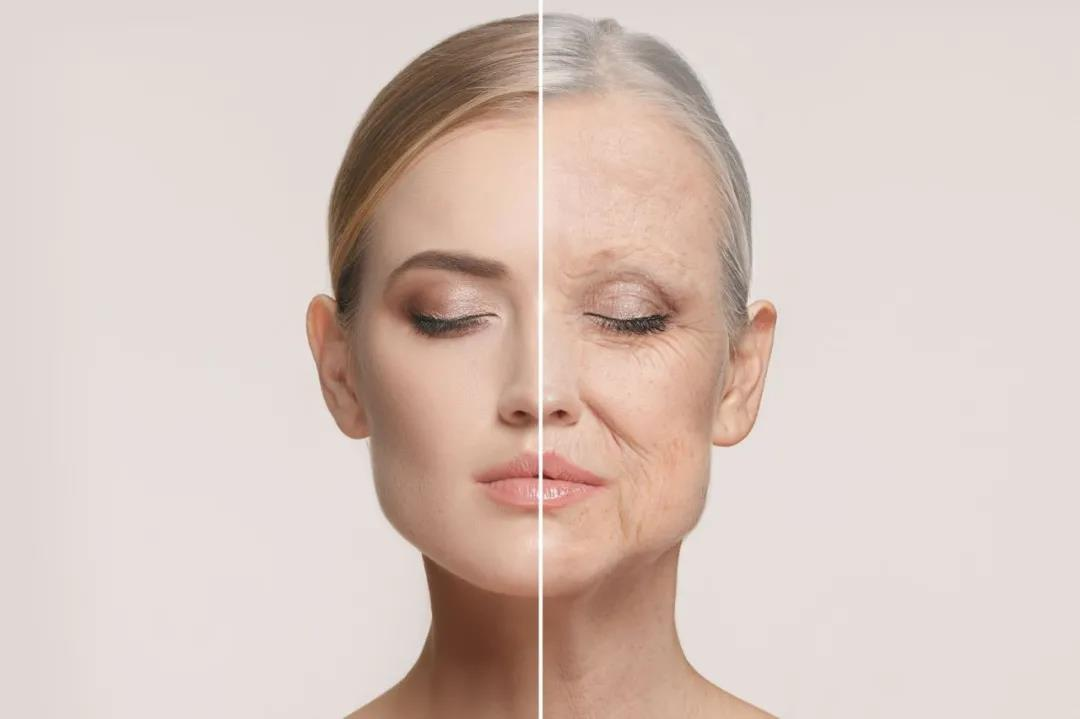 The comparison between a woman's young skin and aging skin