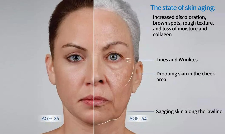 Oilyskinbeauty Skin comparison between 24 year old women and 64 year old women
