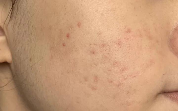 Oilyskinbeauty Acne marks