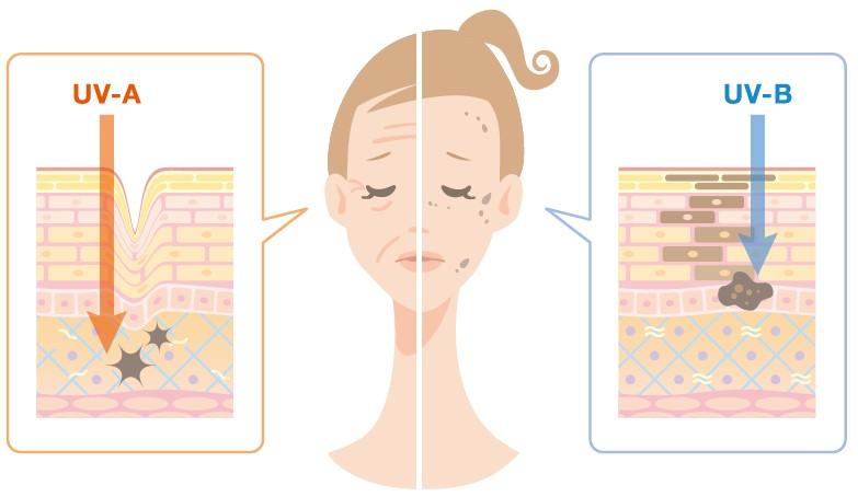 Oilyskinbeauty The difference between UVB and UVA damage to the skin