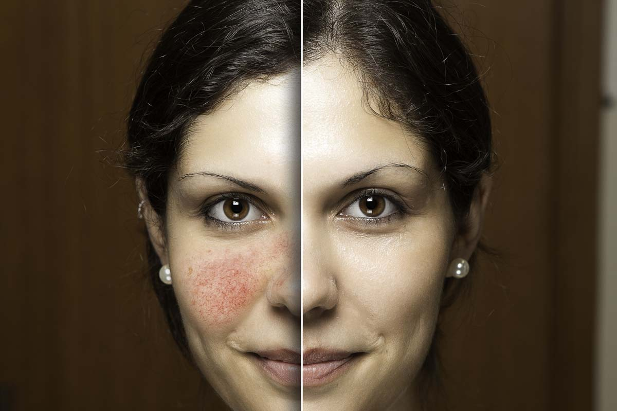 The same woman, the left picture shows her cheeks suffering from inflammation, and the right picture shows her white and flawless cheeks.