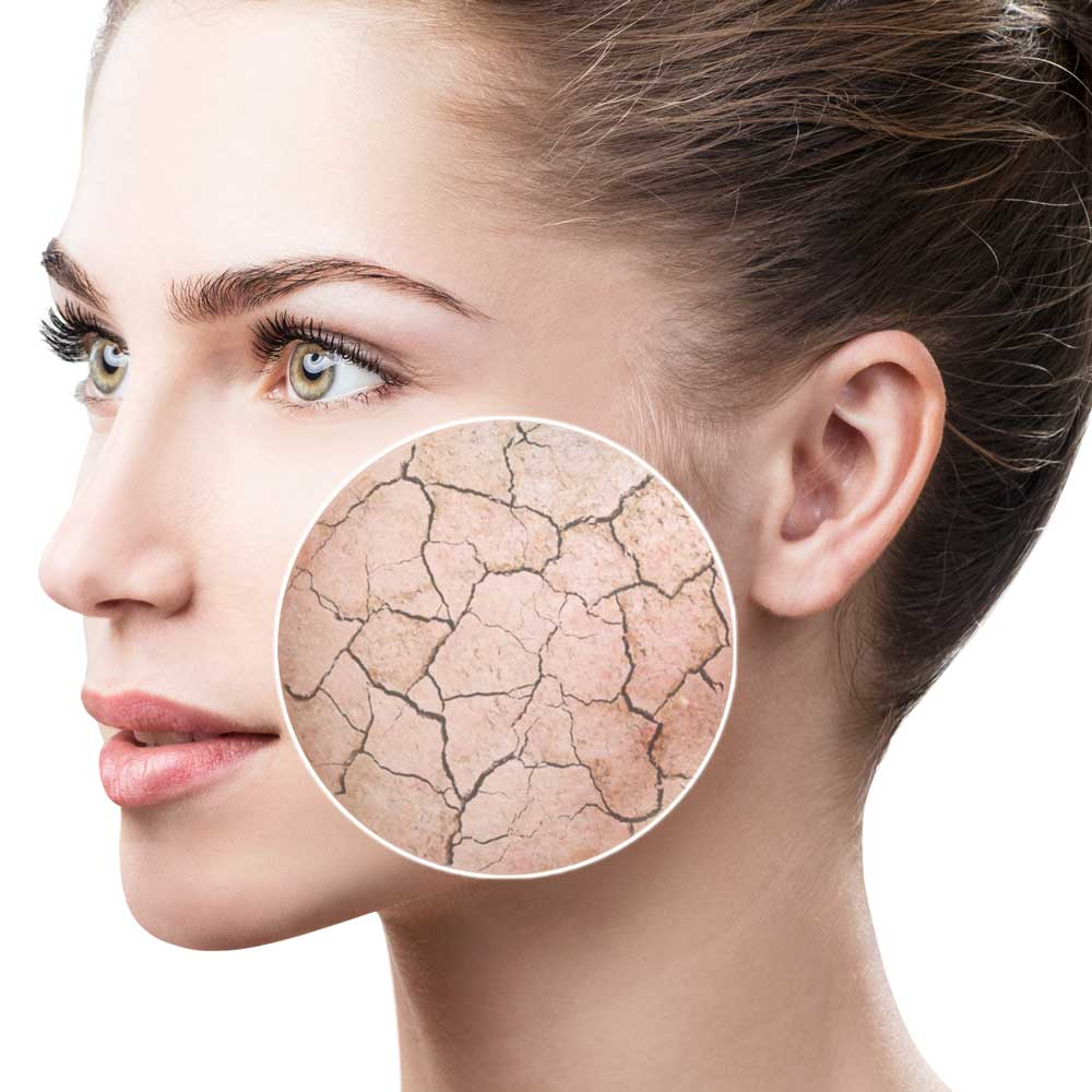 Oilyskinbeauty Dry and Cracked Skin