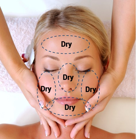 Oilyskinbeauty Dry skin Area