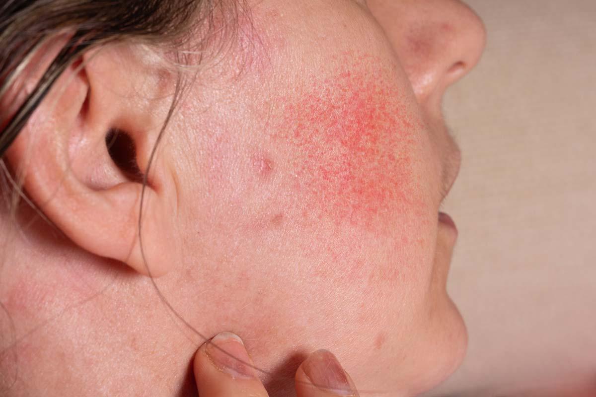 Oilyskinbeauty Facial skin allergies