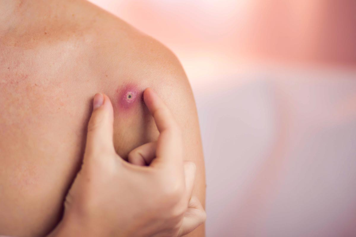 Oilyskinbeauty Inflammation on the shoulder