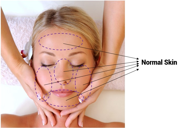 Oilyskinbeauty Normal skin Area
