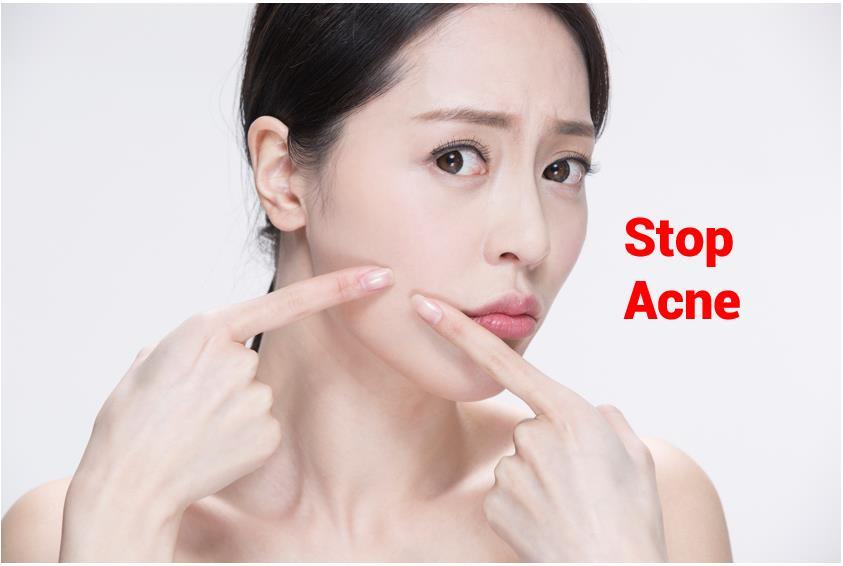 Oilyskinbeauty Stop Acne