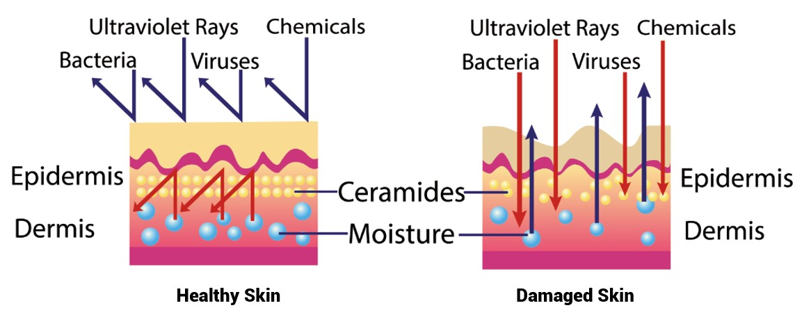 Oilyskinbeauty Ceramide content of healthy skin and damaged skin