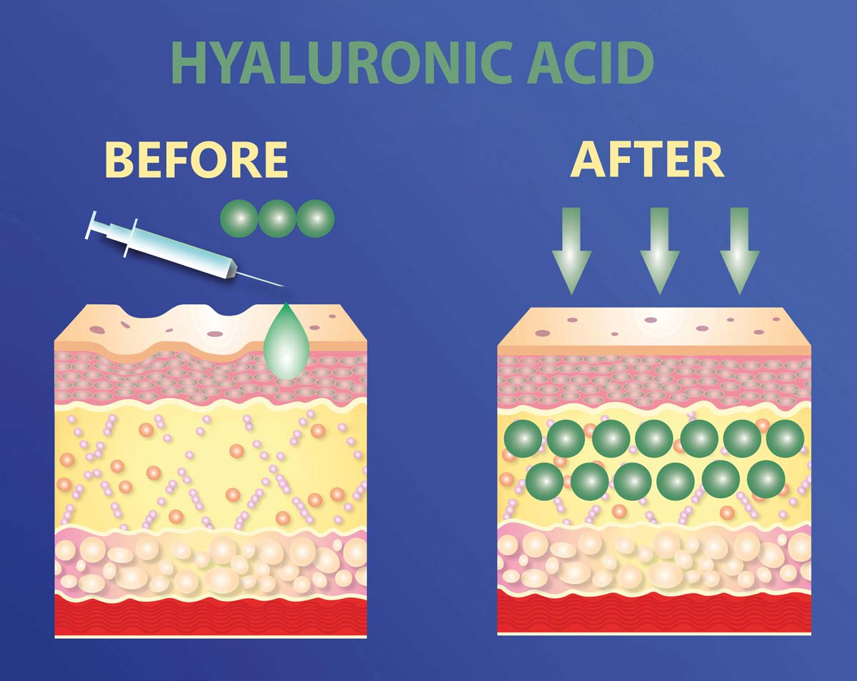 Oilyskinbeauty Before and after injection of hyaluronic acid into the face