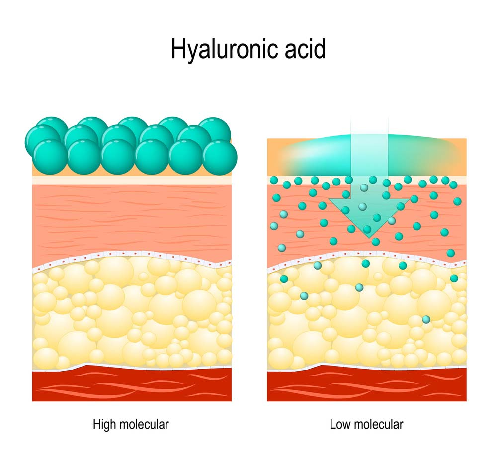 Oilyskinbeauty The difference between the large and small molecules of hyaluronic acid to the skin